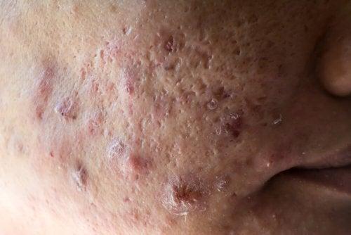 prevenir y tratar el acné