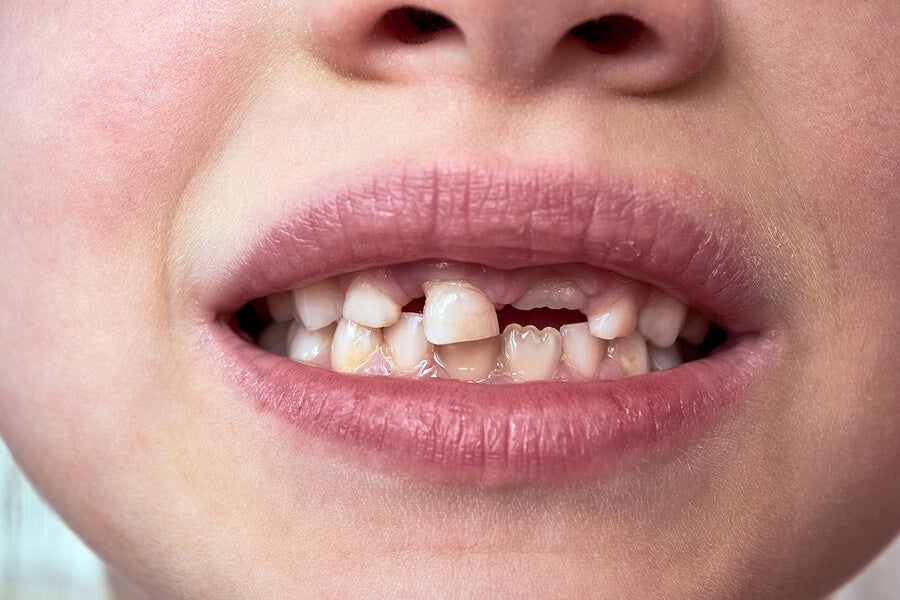 Cómo debemos conservar un diente fuera de la boca
