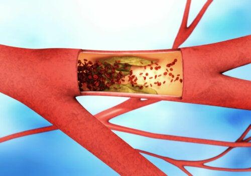 Enfermedad arterial periférica: síntomas, causas y tratamiento