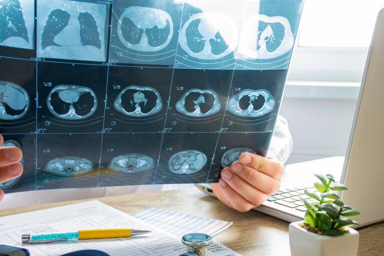 Embolia pulmonar: síntomas y tratamiento