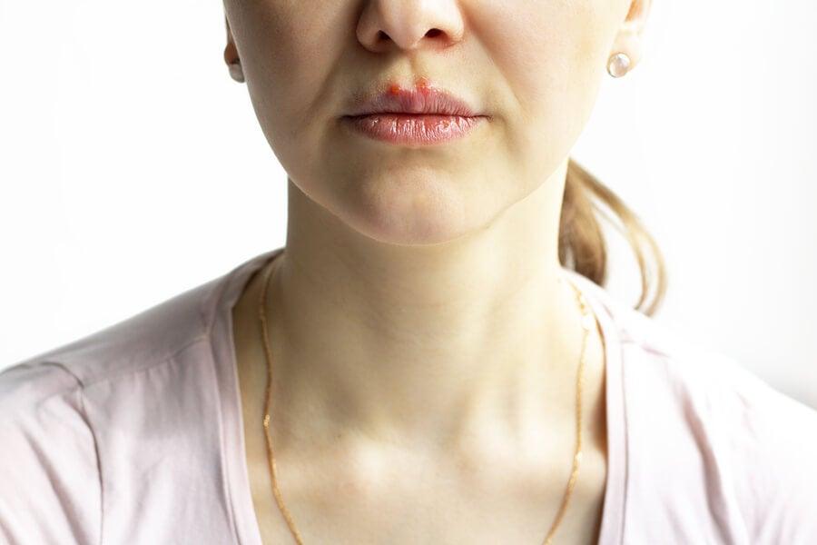 Mujer con pénfigo vulgar