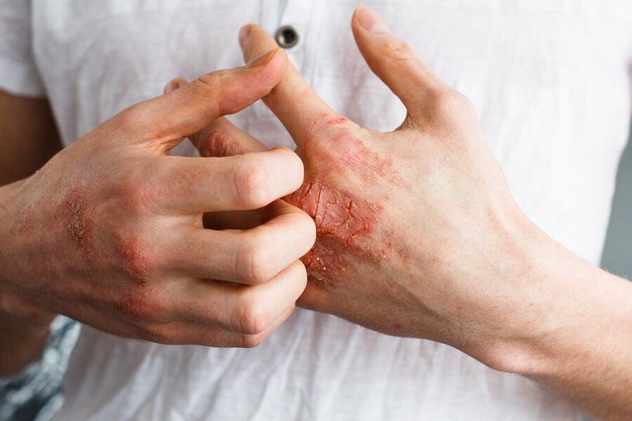 picor en las palmas de las manos