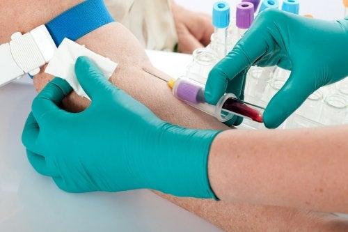 Síntomas y causas de la hiperpotasemia