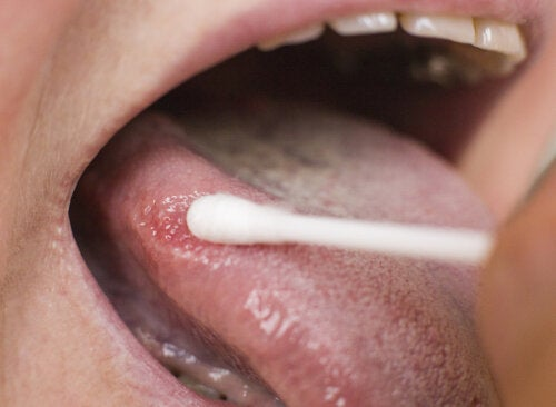 Puntos negros en la lengua, ¿en qué consisten?