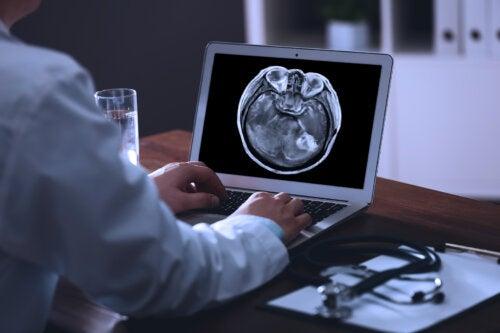 Metástasis cerebral: ¿qué es y cuál es su tratamiento?