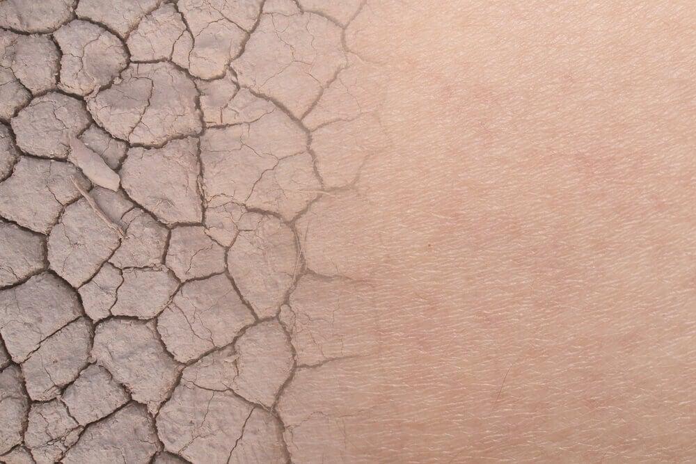 Algunos medicamentos como la Diprogenta pueden causar resequedad en la piel.