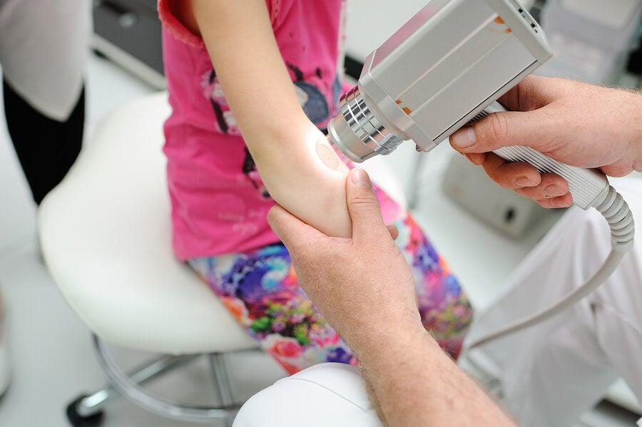 Ventajas del tratamiento láser en dermatología pediátrica