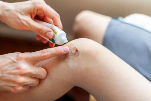 Gentamicina: usos y efectos secundarios