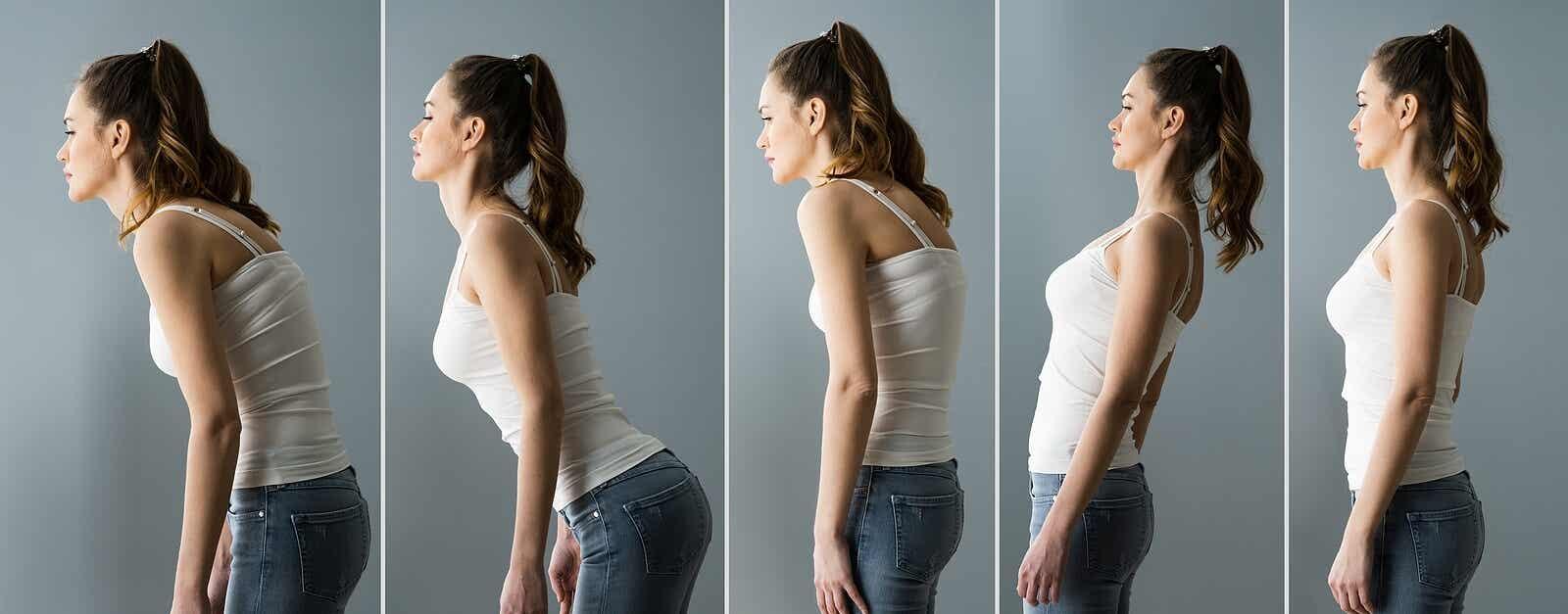 Problemas de postura.
