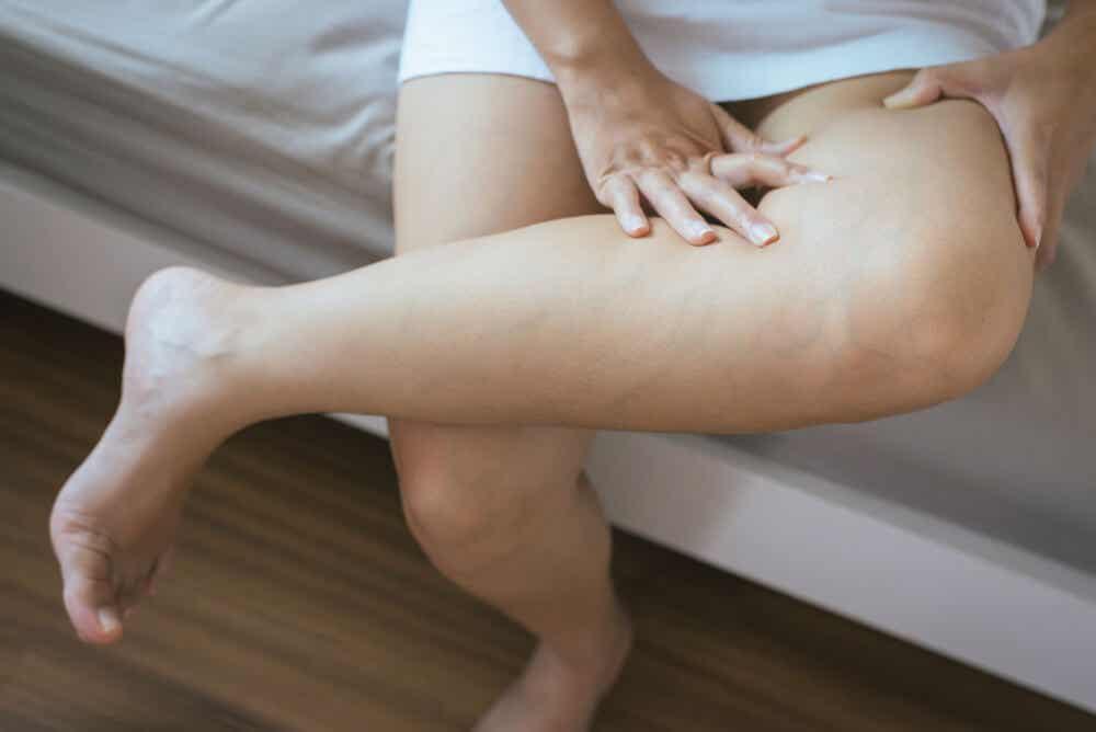 5 claves para las piernas hinchadas por el calor