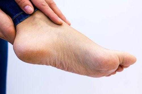 El color amarillento de las plantas de los pies también puede indicar anemia.