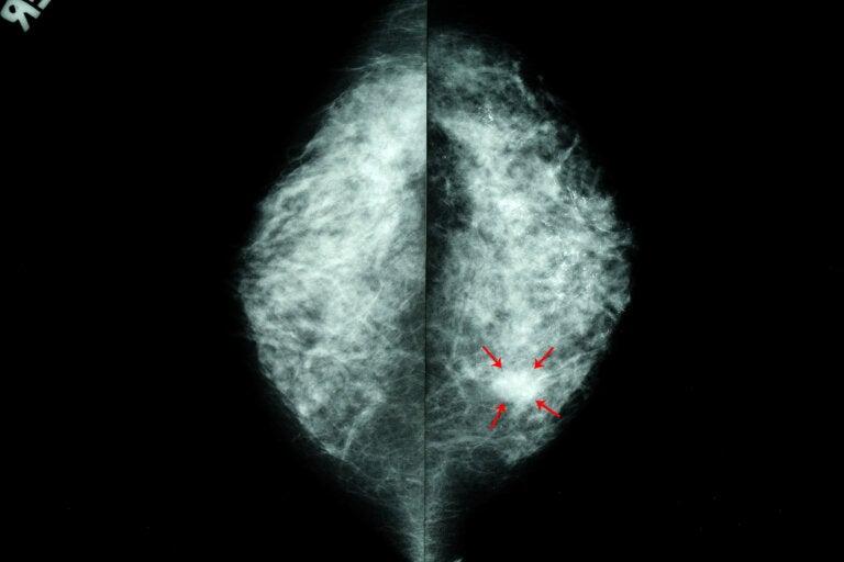 Calcificaciones mamarias: síntomas, causas y tratamientos