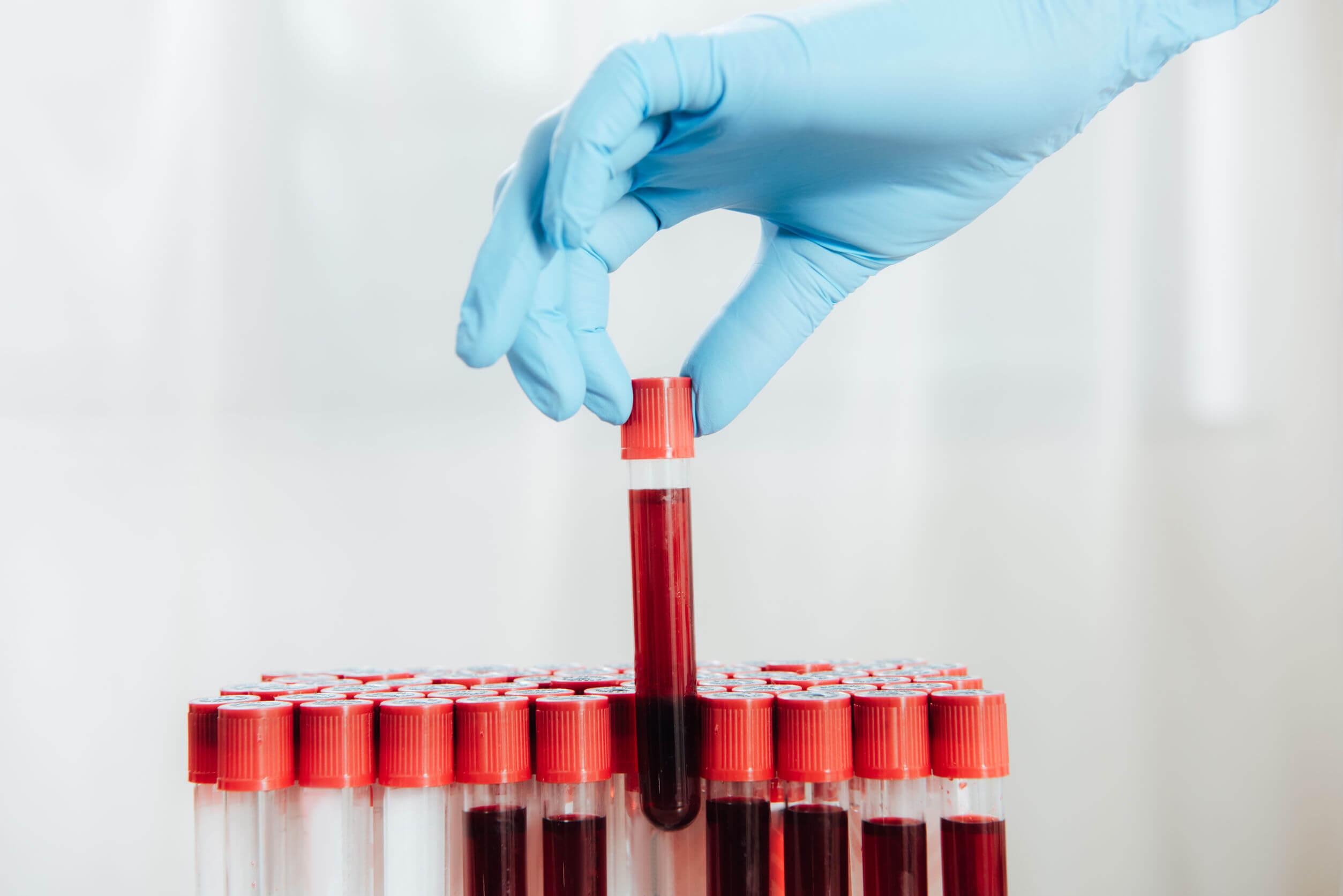 ¿Cada cuánto tiempo hay que hacerse un análisis de sangre?
