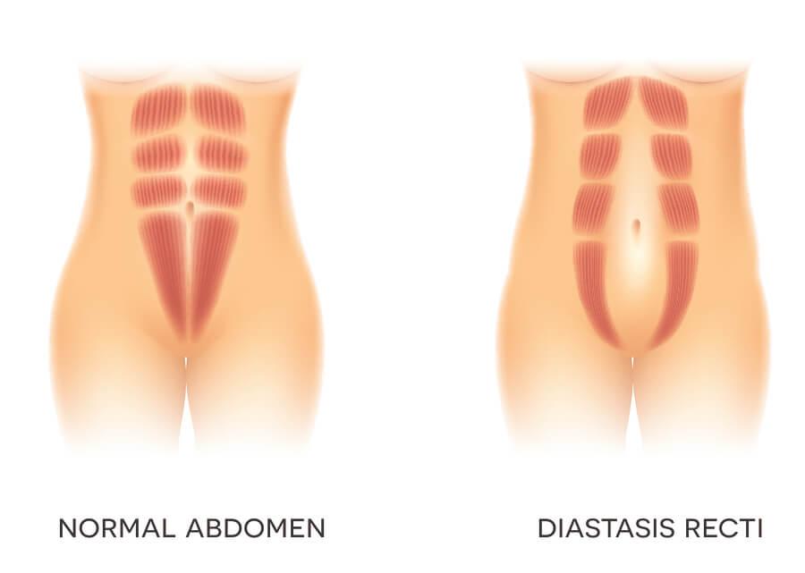 ¿Qué es la diástasis del recto abdominal?