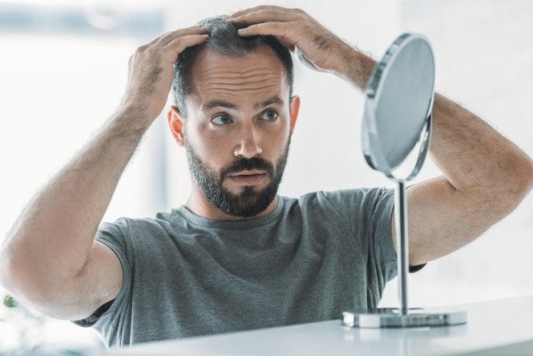 Alopecia androgénica: síntomas, causas y tratamiento