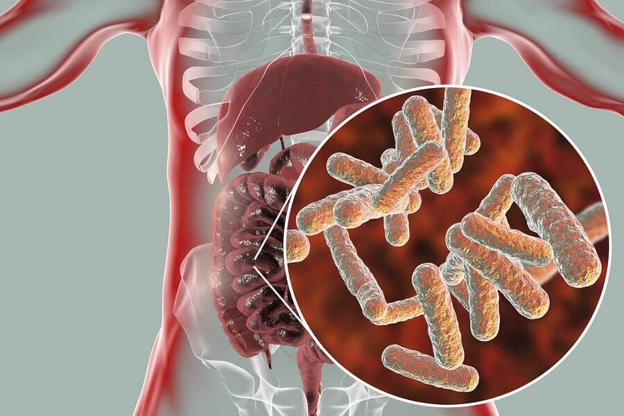 Microbiota intestinal y fibromialgia