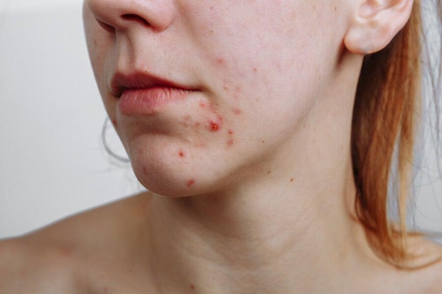 ¿Hay relación entre la dieta y el acné?