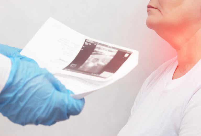 Nódulos tiroideos: síntomas y causas