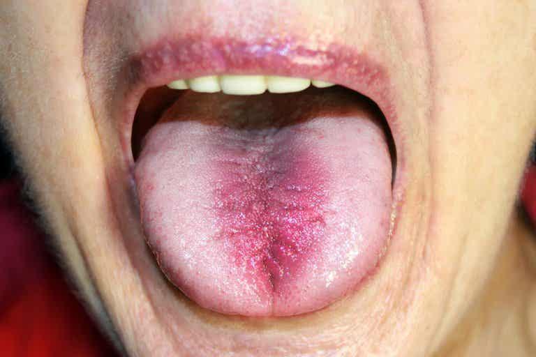 Síndrome de la boca ardiente