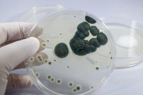 medidas para prevenir la resisitencia a la penicilina