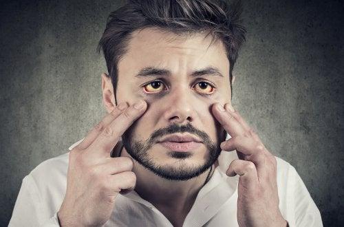 Síndrome de Gilbert: síntomas y tratamiento