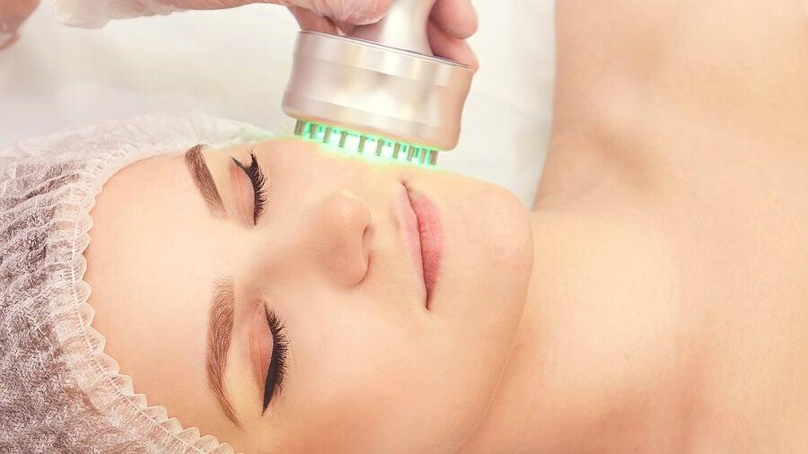 La radiofrecuencia es un tipo de tratamiento dermatológico.