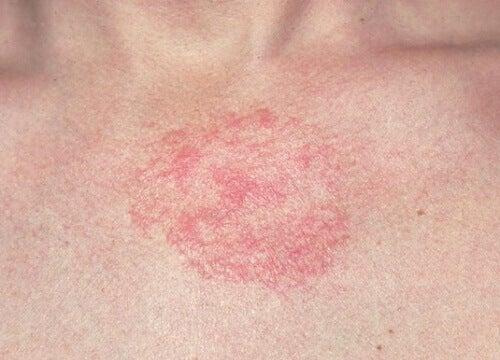 actinodermatosis