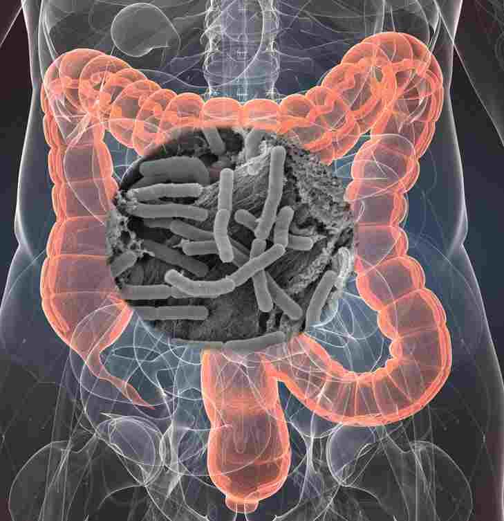 microbiota y enfermedades crónicas