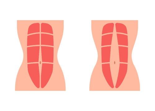Diástasis abdominal: qué es y cómo se trata