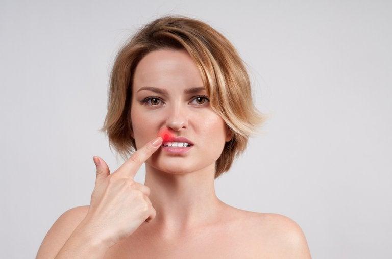 ¿Qué es un herpes labial?