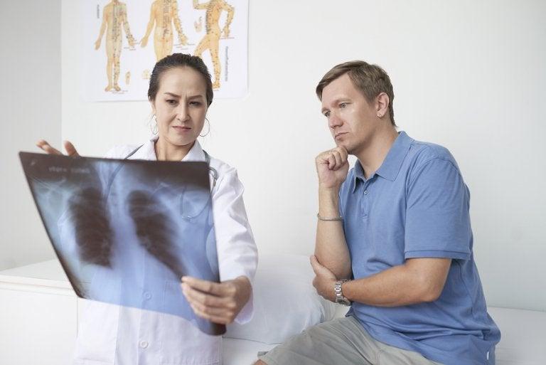 Pleuritis: síntomas, causas y tratamiento