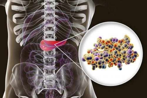 Insulina: ¿qué es y para qué sirve?