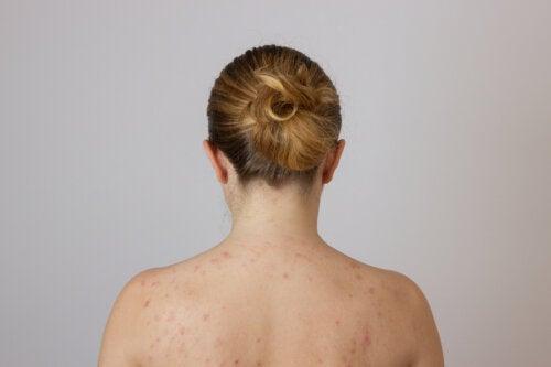 ¿Por qué me salen granos en la espalda?