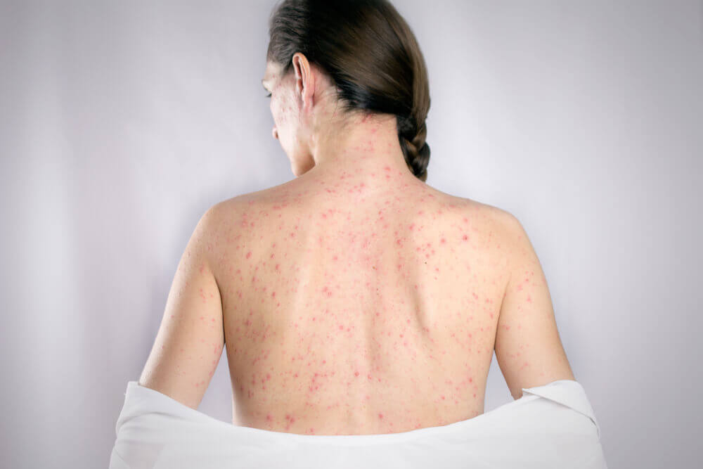 Causas de la aparición de granos en la espalda