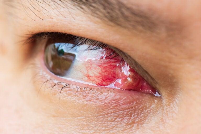 Carnosidad en los ojos: ¿qué es y por qué aparece?