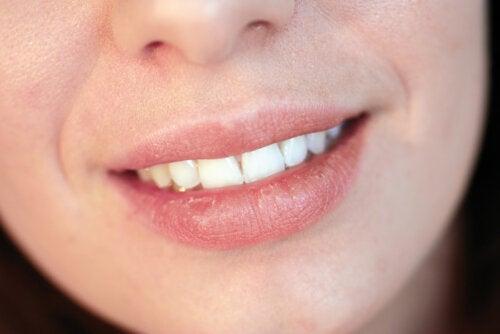 ¿Por qué se resecan los labios?