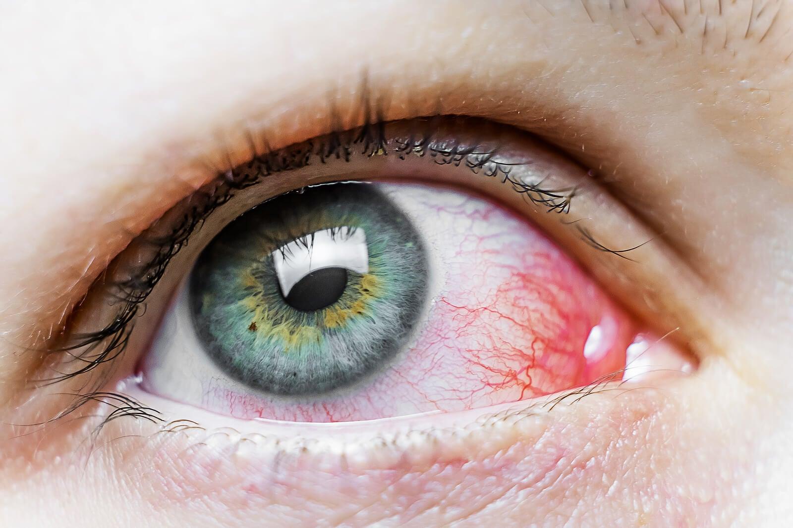 Ojos rojos por fatiga visual.