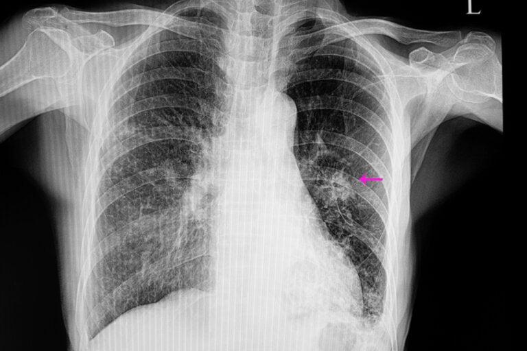 Nódulo pulmonar, ¿qué significa?