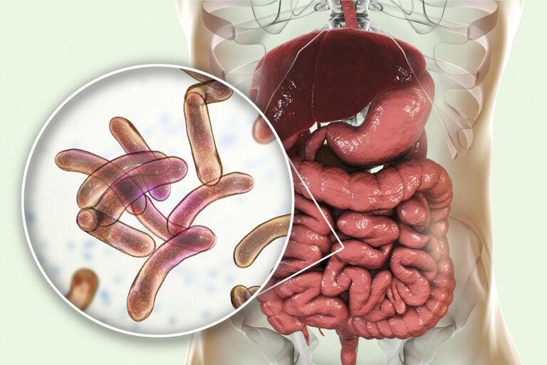 Tratamiento para el sobrecrecimiento bacteriano
