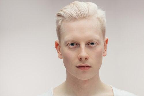 Todo sobre el albinismo