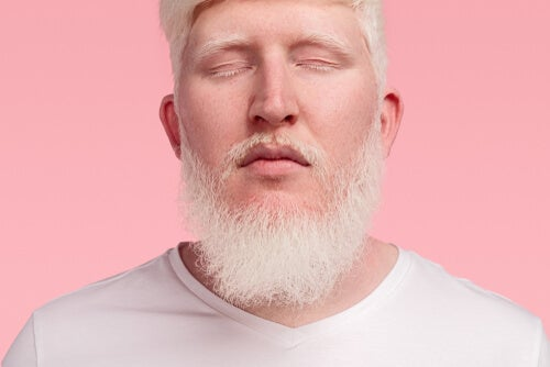 cabello barba albino