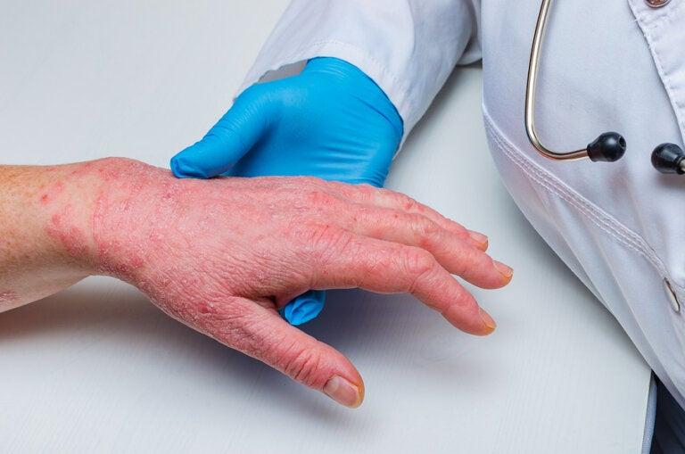 Psoriasis y enfermedad coronaria: ¿cómo se relacionan?