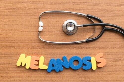 Melanosis del fumador