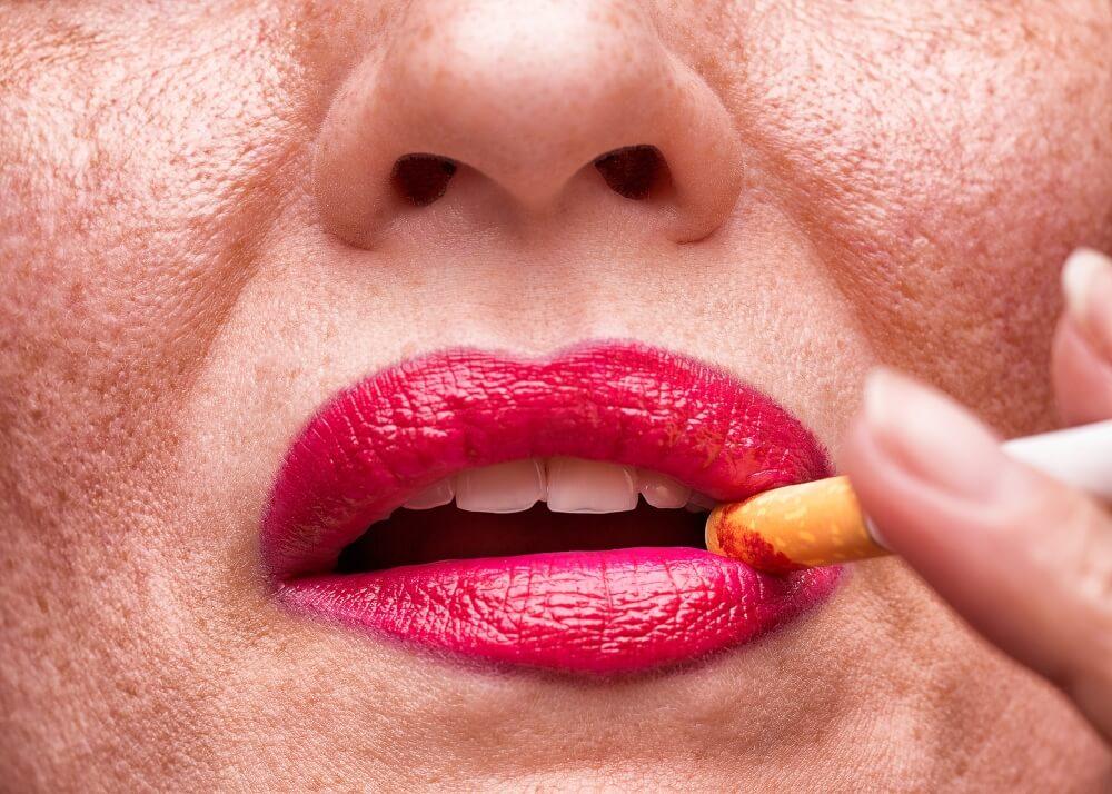 Melanosis del fumador.