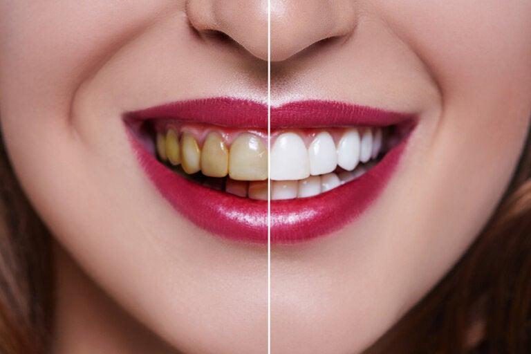 Causas de los dientes manchados