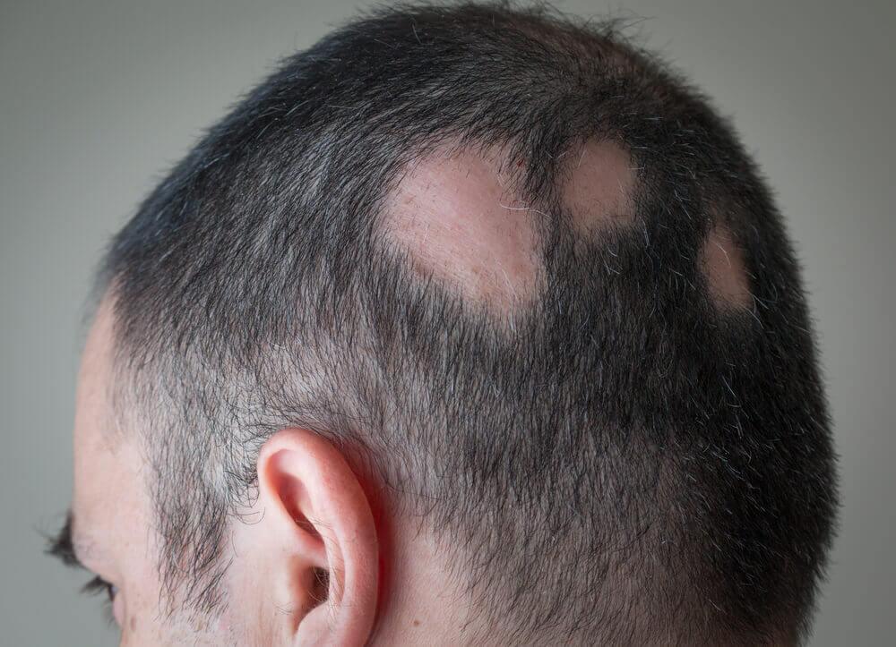 Persona con alopecia