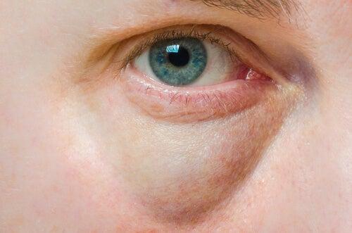 Párpados hinchados: causas y tratamientos