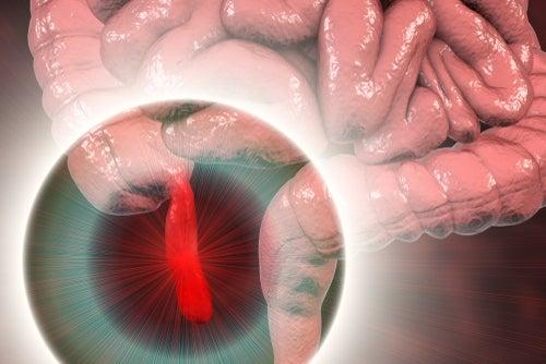 ubicación del apéndice en el intestino