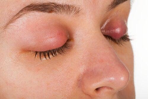 Caspa en las pestañas o blefaritis: síntomas y tratamiento