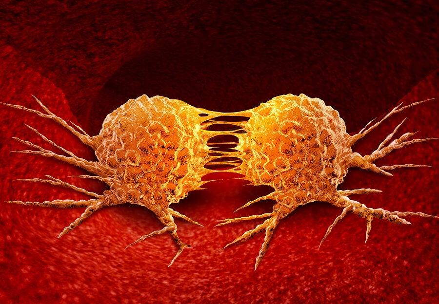 Origen del cáncer